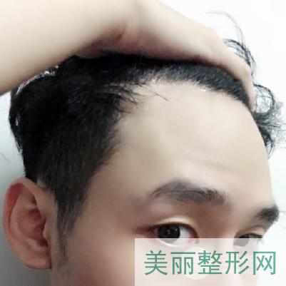 重庆西南医院植发挂什么科