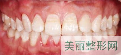 天津口腔医院洗牙要多少钱