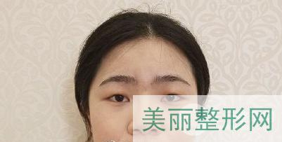 天津医科大学第二医院整形美容科案例