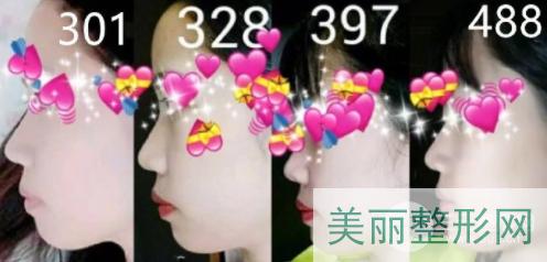 沈阳医大一院正畸案例