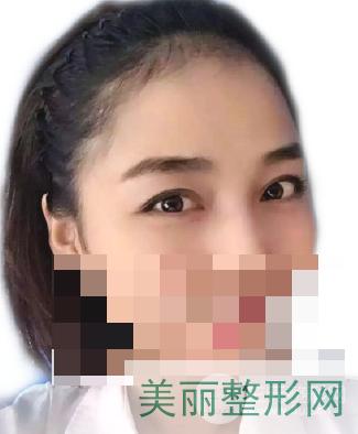 重庆西南医院植发怎么样