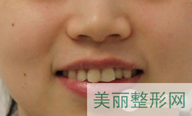 西京医院牙齿矫正专家案例