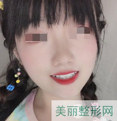广州南方医院口腔科正畸案例