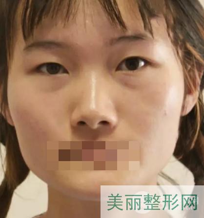 武汉广州军区总医院整形科案例反馈