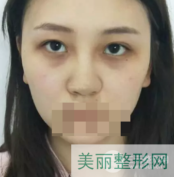 天津第一中心医院整形外科口碑案例