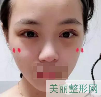 天津第一中心医院美容整形案例经典