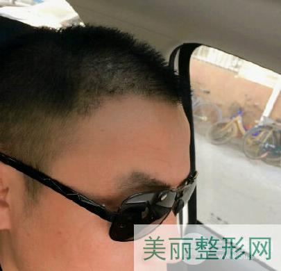 上海同济医院植发