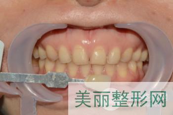 齐鲁医院牙齿美白怎么样