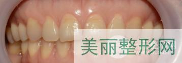 齐鲁医院牙齿美白效果图
