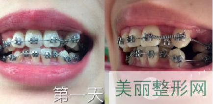 北京协和医院牙齿矫正案例