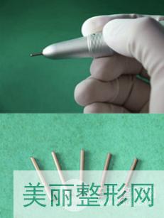 西京医院植发价格表