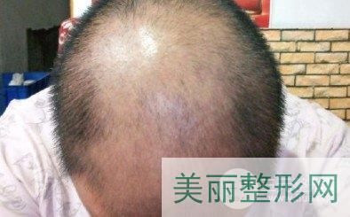 郑大五附院植发有医生能做吗