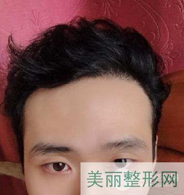 上海九院植发案例图