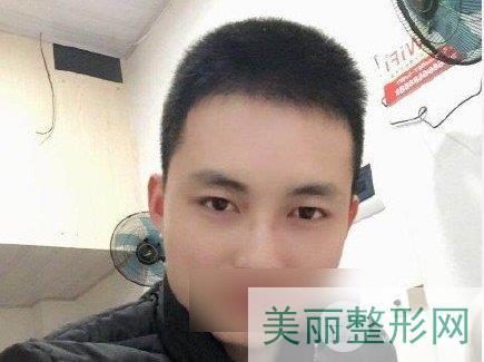 上海长征医院植发收费标准