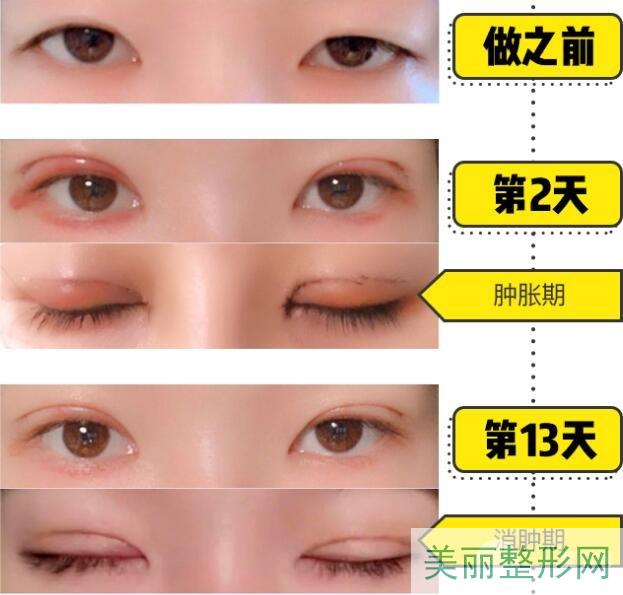 广州曙光做双眼皮案例分享、