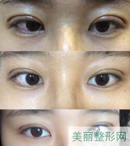 湘雅三医院整形科做双眼皮效果