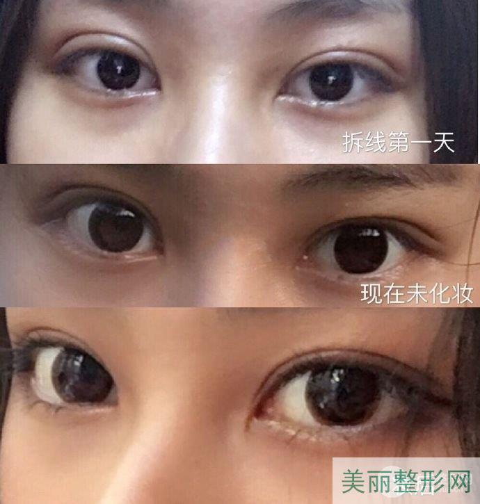 江苏省中医院整形美容科做双眼皮案例图反馈