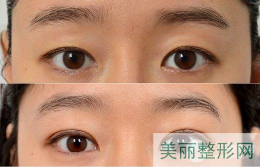 西安交大二附院整形科双眼皮案例分享