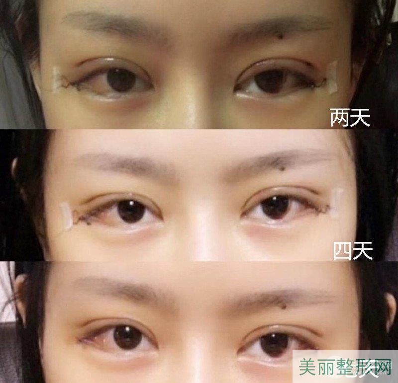 华西医院整形外科双眼皮案例图