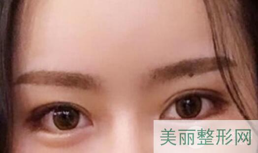 华西医院整形科双眼皮案例