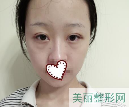 湘雅三医院整形科双眼皮案例 价格表