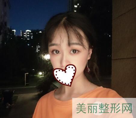 湘雅三医院整形科双眼皮案例图