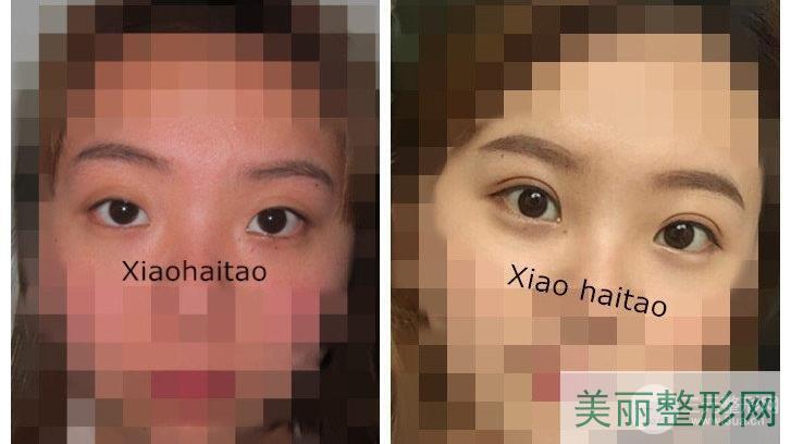 华西医院美容科肖海涛去眼袋双眼皮案例图