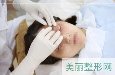 华西医院美容科祛眼袋案例高清图