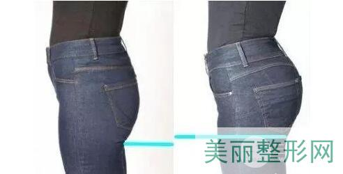 北京东方和谐自体丰臀技术