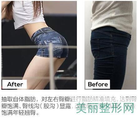 北京东方和谐自体脂肪丰臀效果案例图