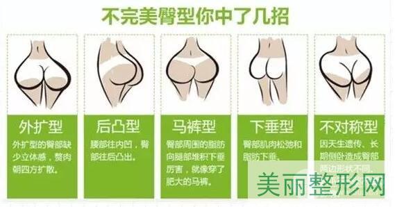 北京东方和谐自体脂肪丰臀效果好不好