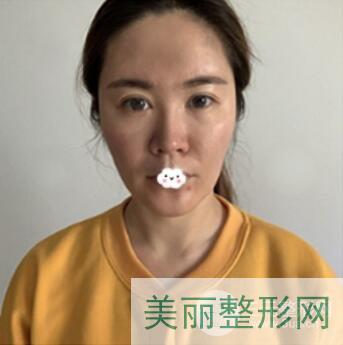 杭州同德医院整形科激光祛斑效果图