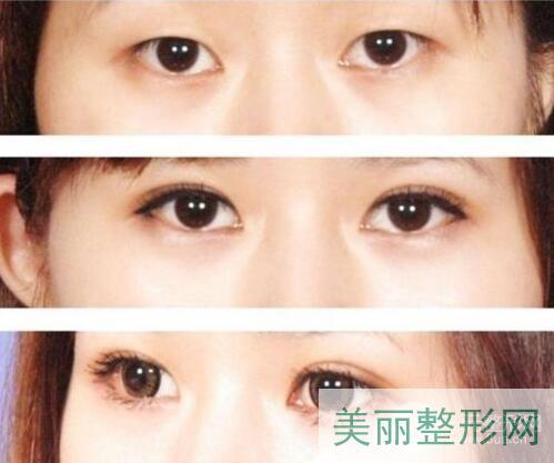 杭州邵逸夫医院整形外科双眼皮案例图