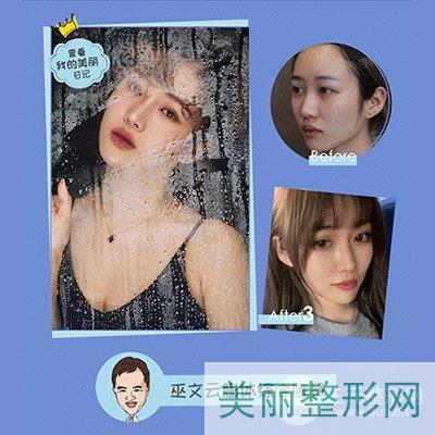 北京米扬丽格巫文云鼻子案例