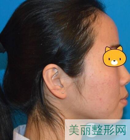 河北省中医院整形美容科祛痘案例