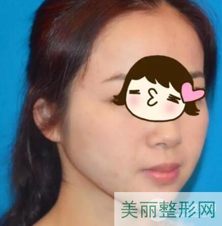 河北省中医院整形美容科祛痘案例图 多少钱