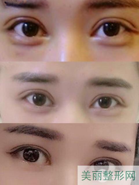 郑州二附院整形科双眼皮案例图