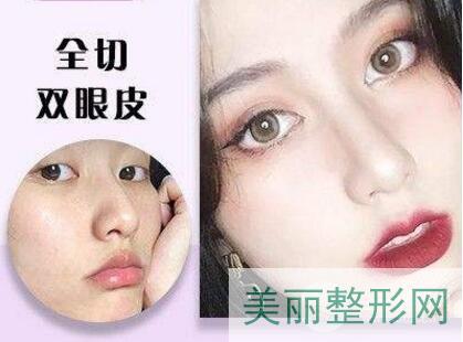重庆医科大学附属第一医院整形美容科双眼皮案例图 多少钱