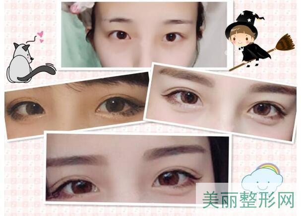 浙江二院整形科医生有哪些 双眼皮案例图