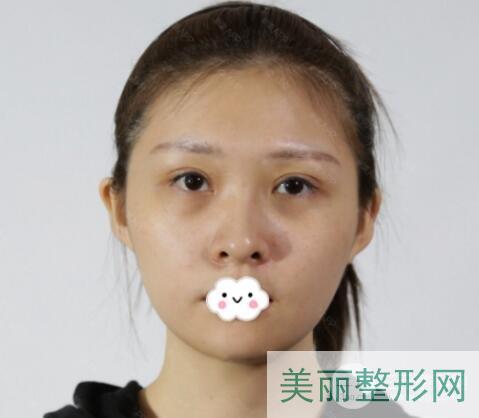 重庆新桥医院美容科祛眼袋案例近期反馈图
