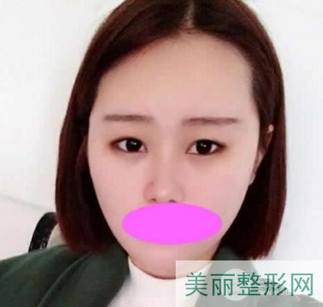 武汉人民医院美容科双眼皮案例图