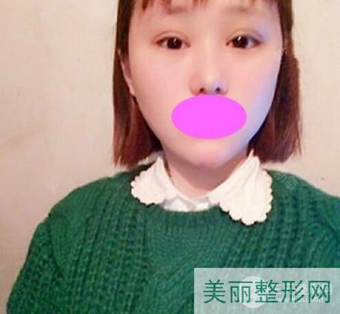 武汉人民医院美容科做双眼皮多少钱
