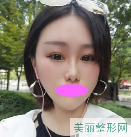 武汉人民医院美容科做双眼皮技术好不好