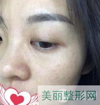 川北医学院附属医院美容科去雀斑多少钱