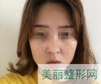 浙江省中医院激光美容科光子嫩肤案例图
