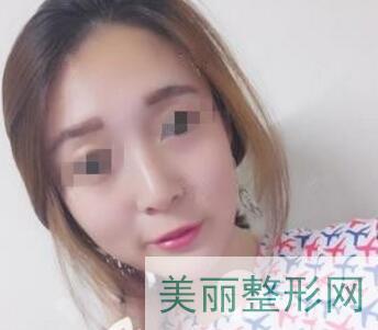 浙江省中医院激光美容多少钱