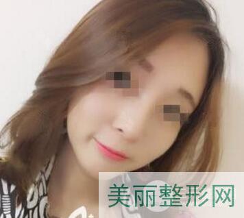 浙江省中医院激光美容一般多少钱