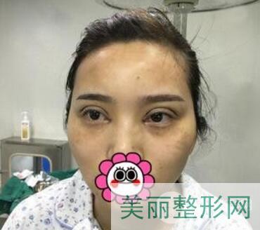 武汉第一医院严志医生双眼皮案例反馈