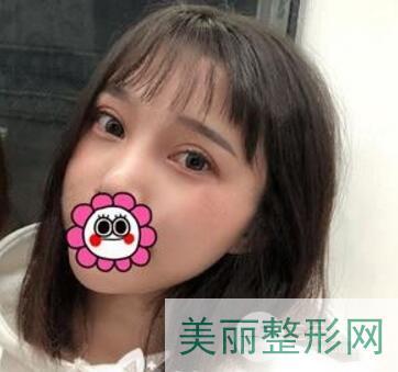 武汉第一医院整形外科做双眼皮多少钱