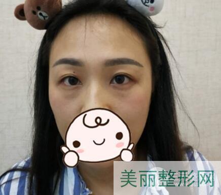 重庆西南医院美容整形科价格表,祛眼袋真实案例